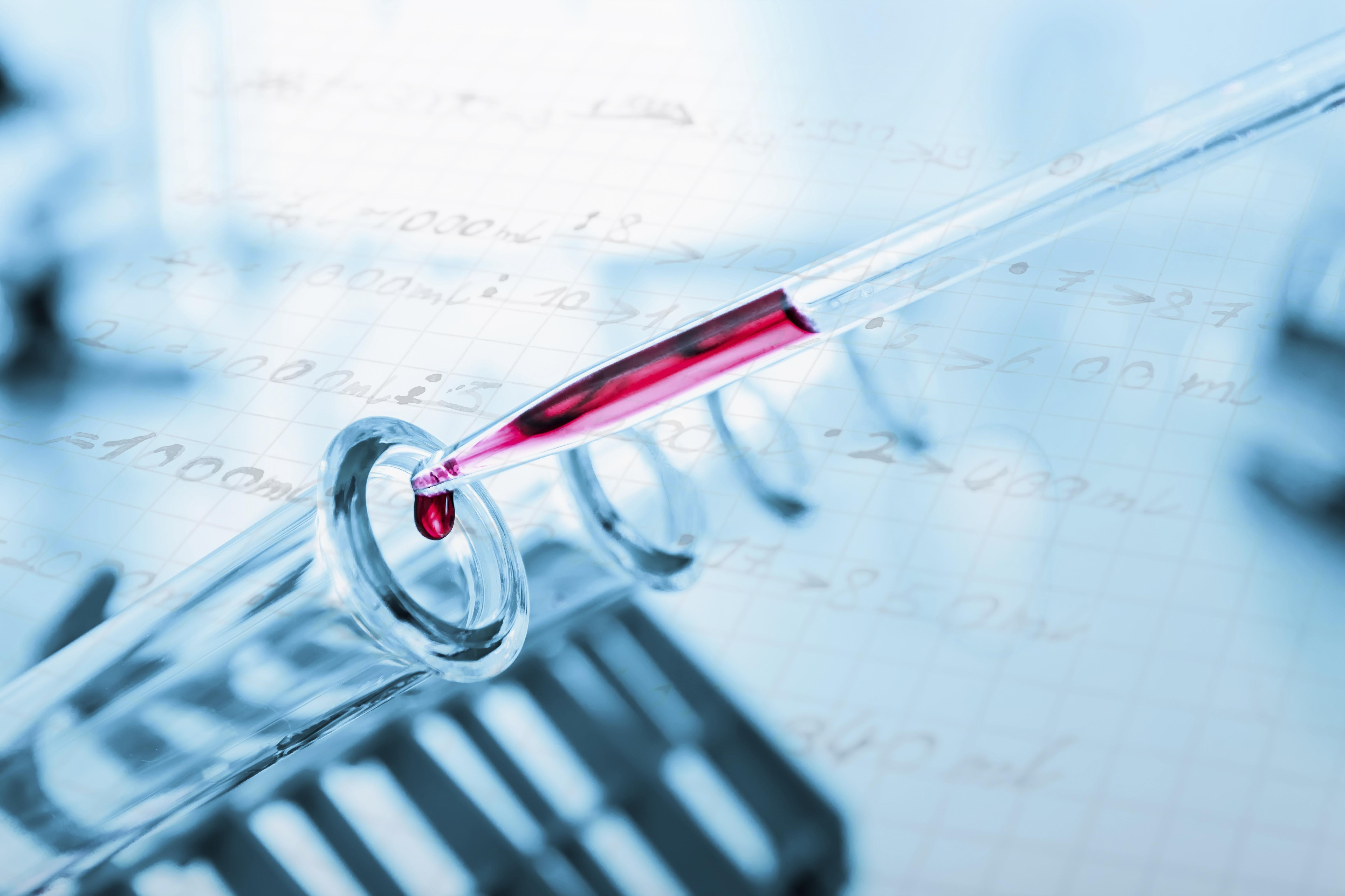 Das Bild zeigt Reagenzgläser und eine Pipette im Labor.